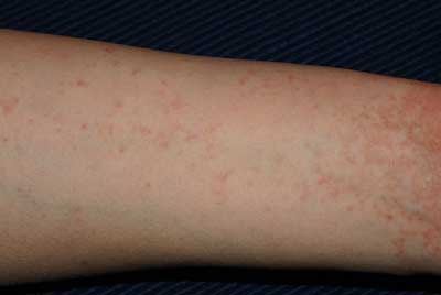What Are The First Signs Of Scabies