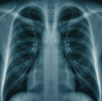 Can lung cancer cause tinnitus enfermedad